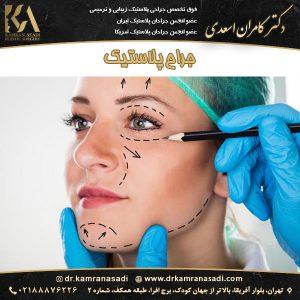 جراح پلاستیک تهران