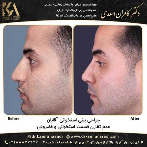 جراحی-بینی-دکتر-اسعدی--4-24