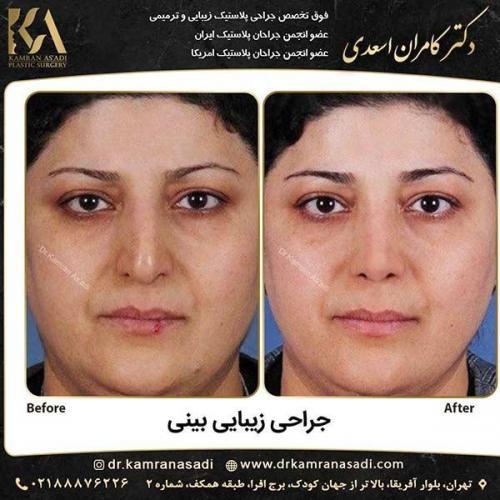 جراحی-بینی-دکتر-اسعدی-1-25