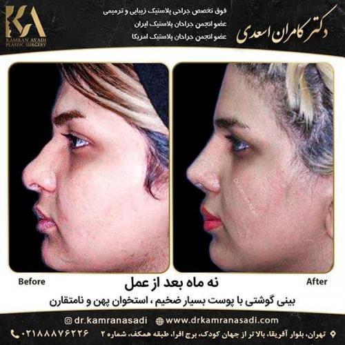 جراحی-بینی-دکتر-اسعدی-3-26