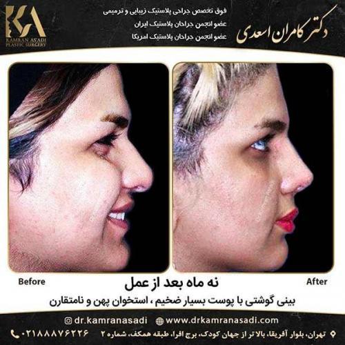 جراحی-بینی-دکتر-اسعدی-4-26