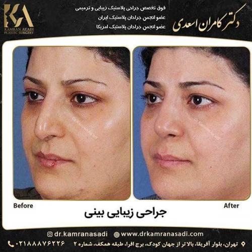 جراحی-بینی-دکتر-اسعدی-5-25